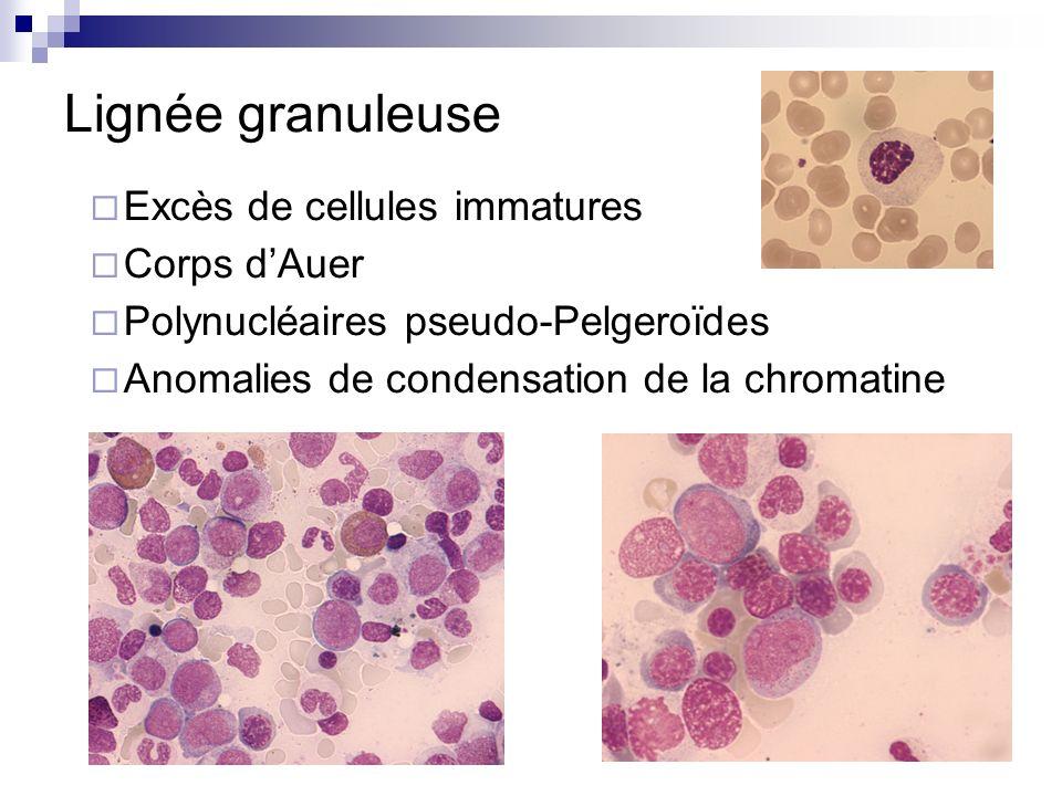 Lignée granuleuse Excès de cellules immatures Corps dAuer Polynucléaires pseudo-Pelgeroïdes Anomalies de condensation de la chromatine