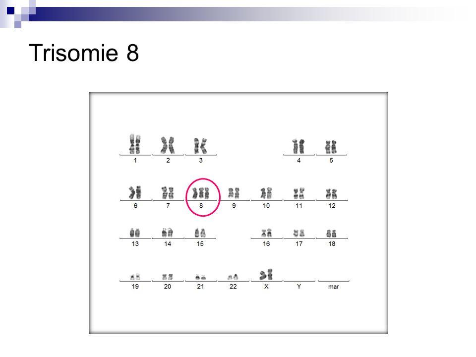 Trisomie 8