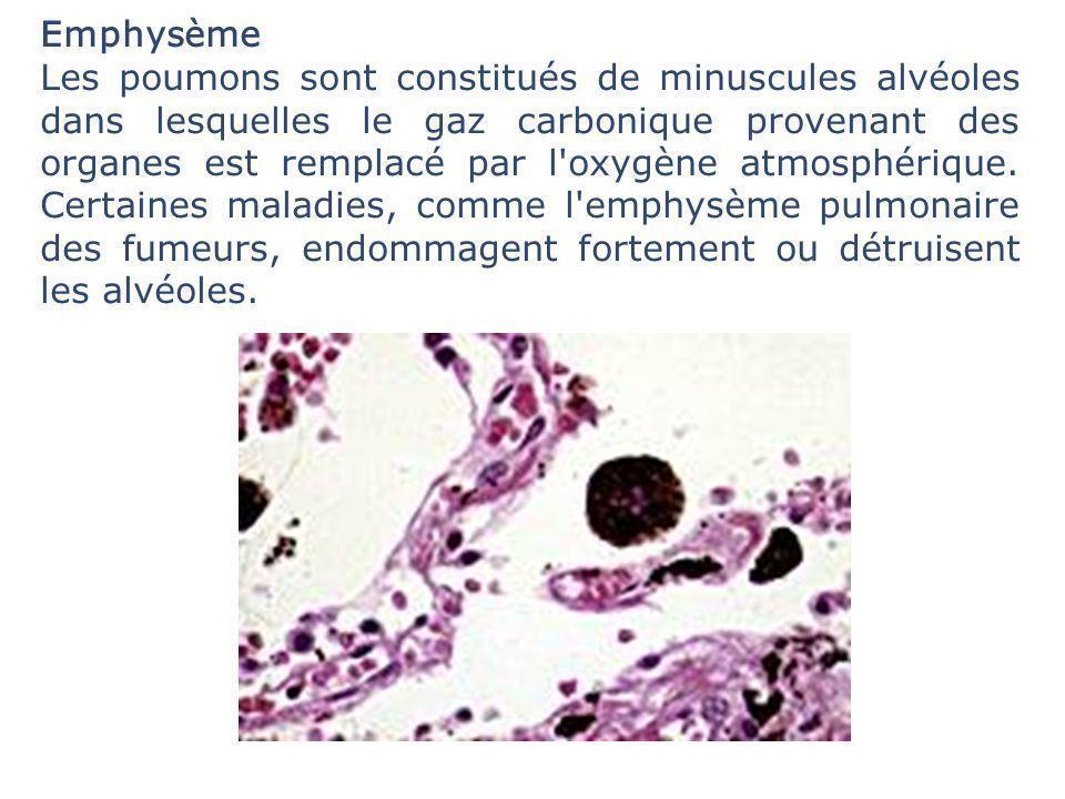 Emphysème Les poumons sont constitués de minuscules alvéoles dans lesquelles le gaz carbonique provenant des organes est remplacé par l'oxygène atmosp