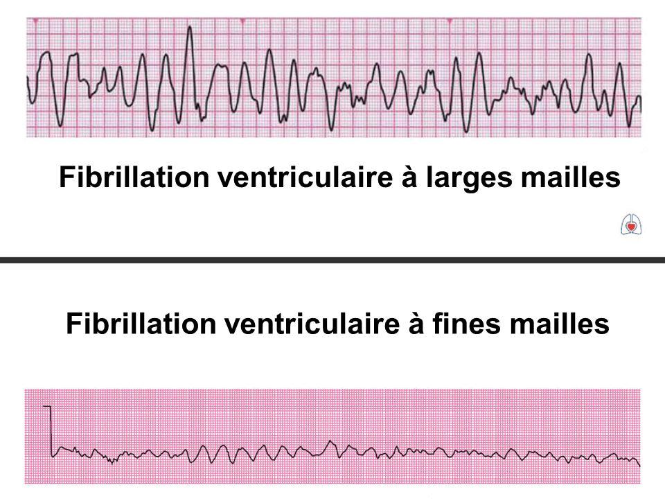 Fibrillation ventriculaire à larges mailles Fibrillation ventriculaire à fines mailles