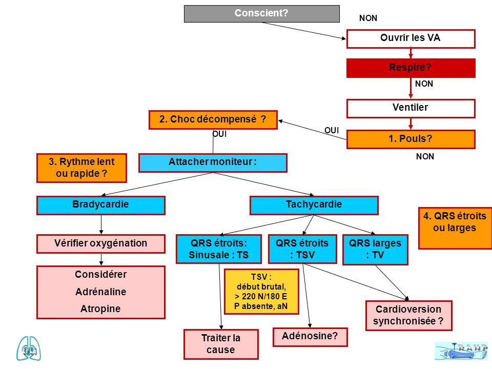 Causes réversibles 4 H n Hypoxie n Hypovolémie n Hypo ou hyperkaliémie n Hypothermie u 4 T –Tamponnade –Tension = PNT –Toxiques –Thrombo- embolie En cours de réanimation glycémie capillaire ionogramme calcémie radio de thorax