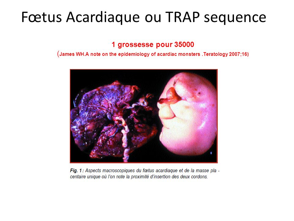 Fœtus Acardiaque ou TRAP sequence 1 grossesse pour 35000 ( James WH.A note on the epidemiology of acardiac monsters.Teratology 2007;16)