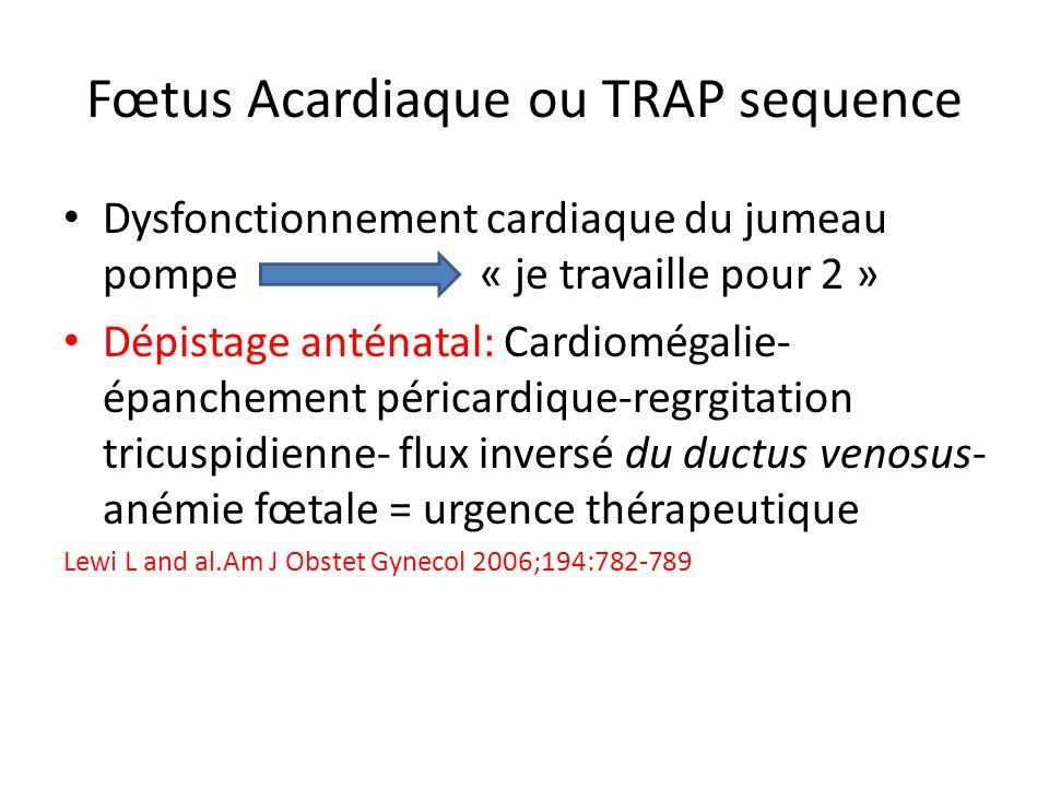 Fœtus Acardiaque ou TRAP sequence Dysfonctionnement cardiaque du jumeau pompe « je travaille pour 2 » Dépistage anténatal: Cardiomégalie- épanchement