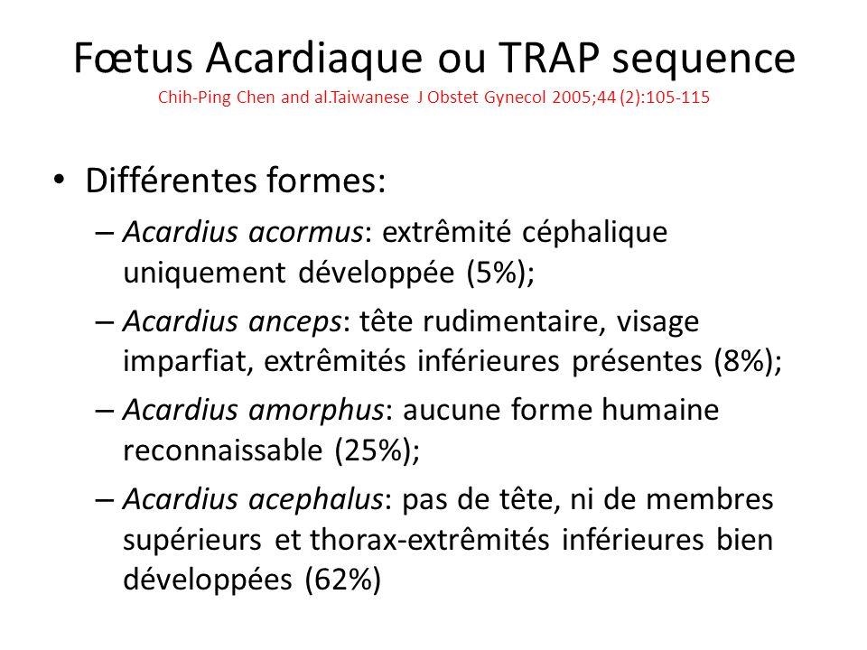 Fœtus Acardiaque ou TRAP sequence Chih-Ping Chen and al.Taiwanese J Obstet Gynecol 2005;44 (2):105-115 Différentes formes: – Acardius acormus: extrêmi