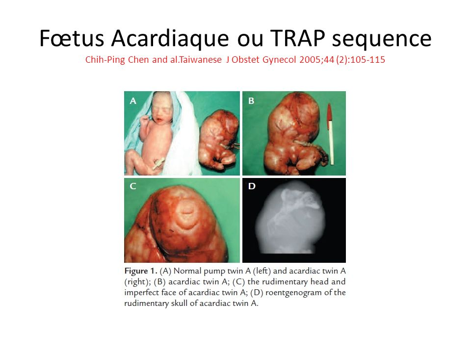 Fœtus Acardiaque ou TRAP sequence Chih-Ping Chen and al.Taiwanese J Obstet Gynecol 2005;44 (2):105-115