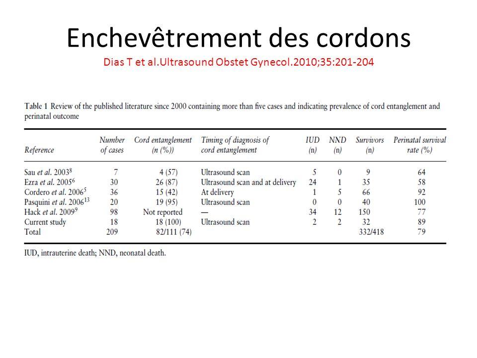 Enchevêtrement des cordons Dias T et al.Ultrasound Obstet Gynecol.2010;35:201-204