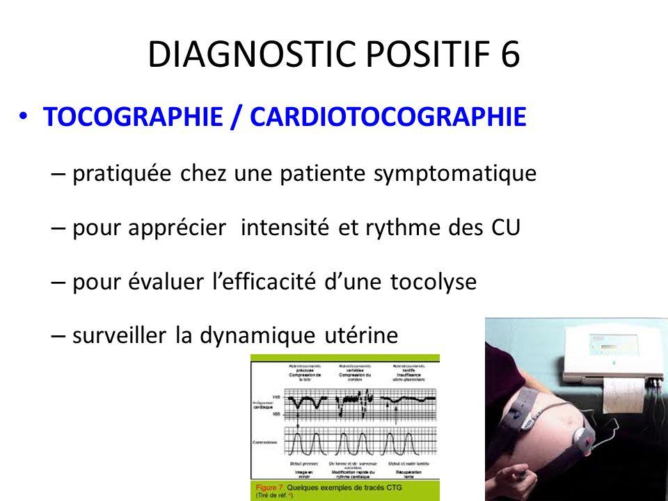 DIAGNOSTIC POSITIF 6 TOCOGRAPHIE / CARDIOTOCOGRAPHIE – pratiquée chez une patiente symptomatique – pour apprécier intensité et rythme des CU – pour év