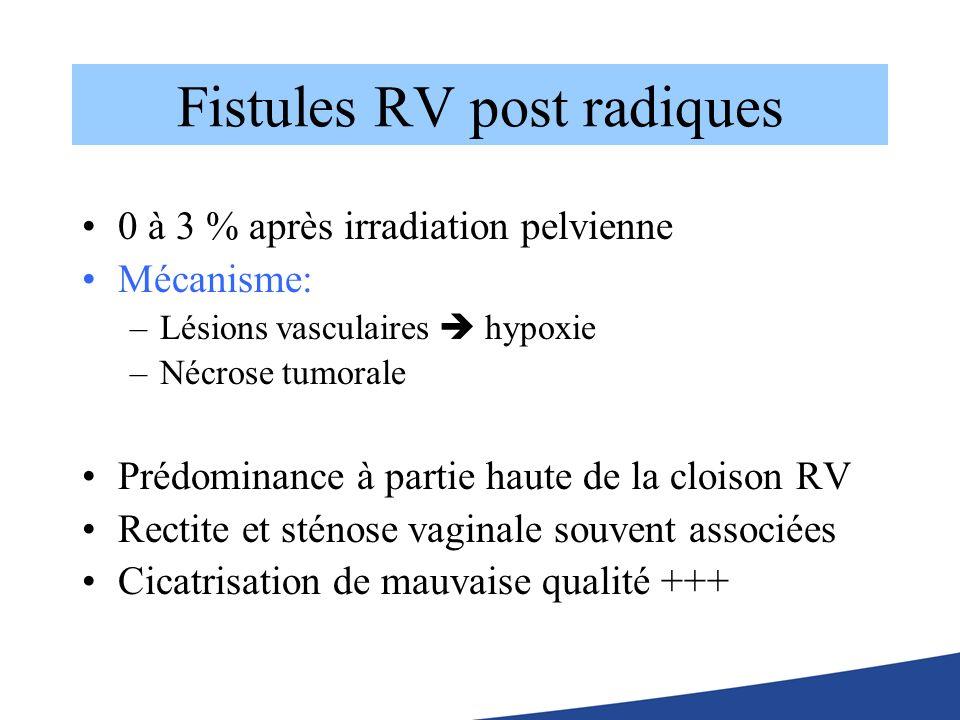Fistules RV post radiques 0 à 3 % après irradiation pelvienne Mécanisme: –Lésions vasculaires hypoxie –Nécrose tumorale Prédominance à partie haute de