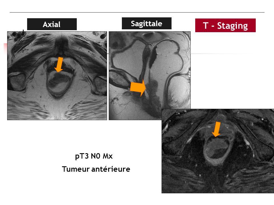 Sagittale Axial pT3 N0 Mx Tumeur antérieure T - Staging