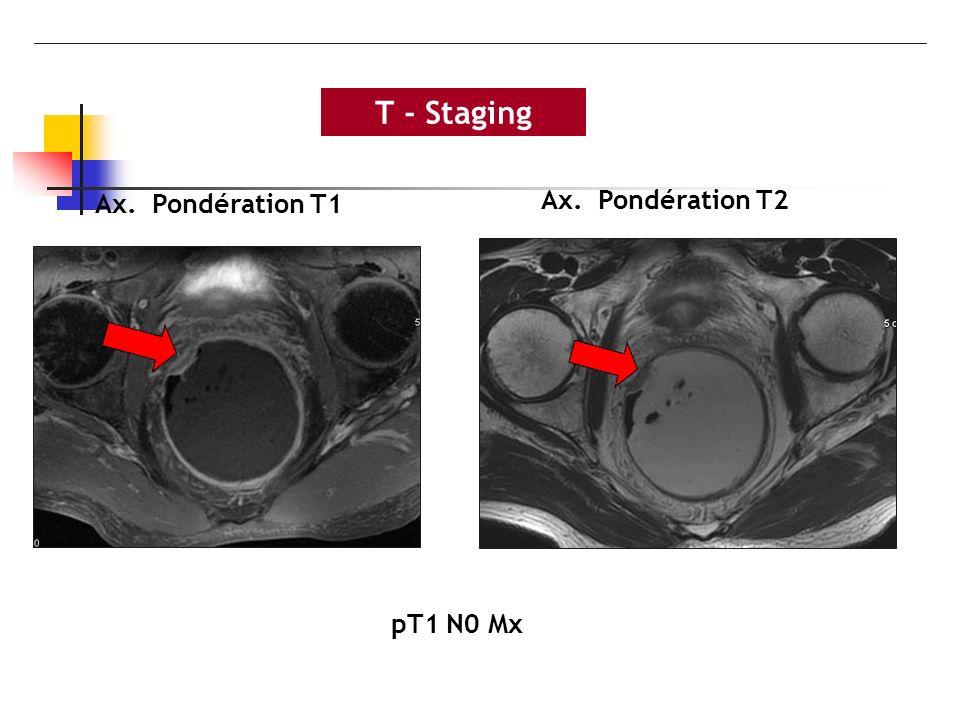T - Staging pT1 N0 Mx Ax. Pondération T2 Ax. Pondération T1