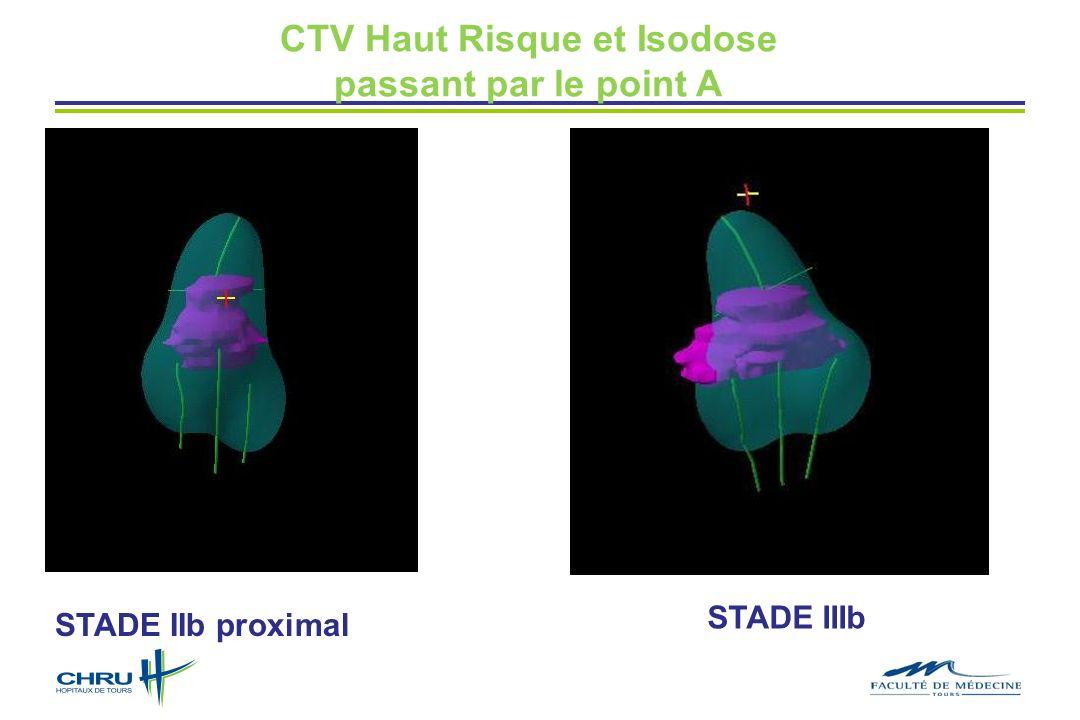 CTV Haut Risque et Isodose passant par le point A STADE IIb proximal STADE IIIb