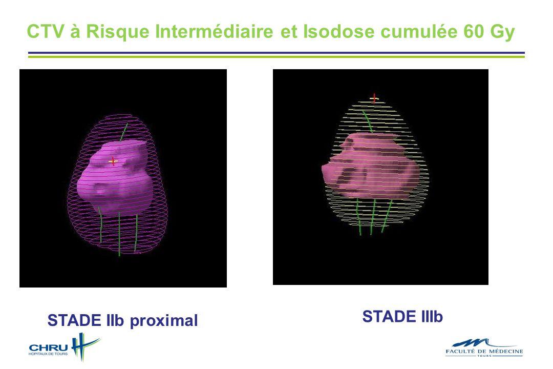 CTV à Risque Intermédiaire et Isodose cumulée 60 Gy STADE IIb proximal STADE IIIb