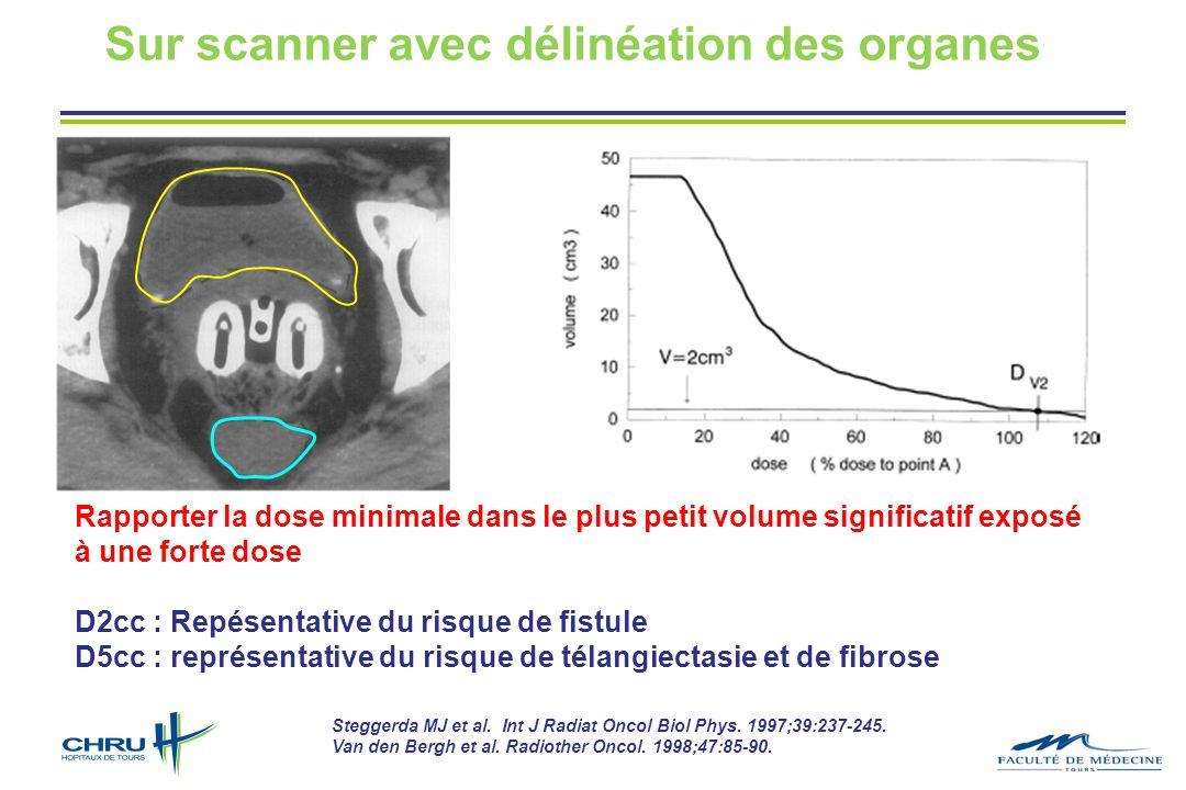 Sur scanner avec délinéation des organes Steggerda MJ et al. Int J Radiat Oncol Biol Phys. 1997;39:237-245. Van den Bergh et al. Radiother Oncol. 1998
