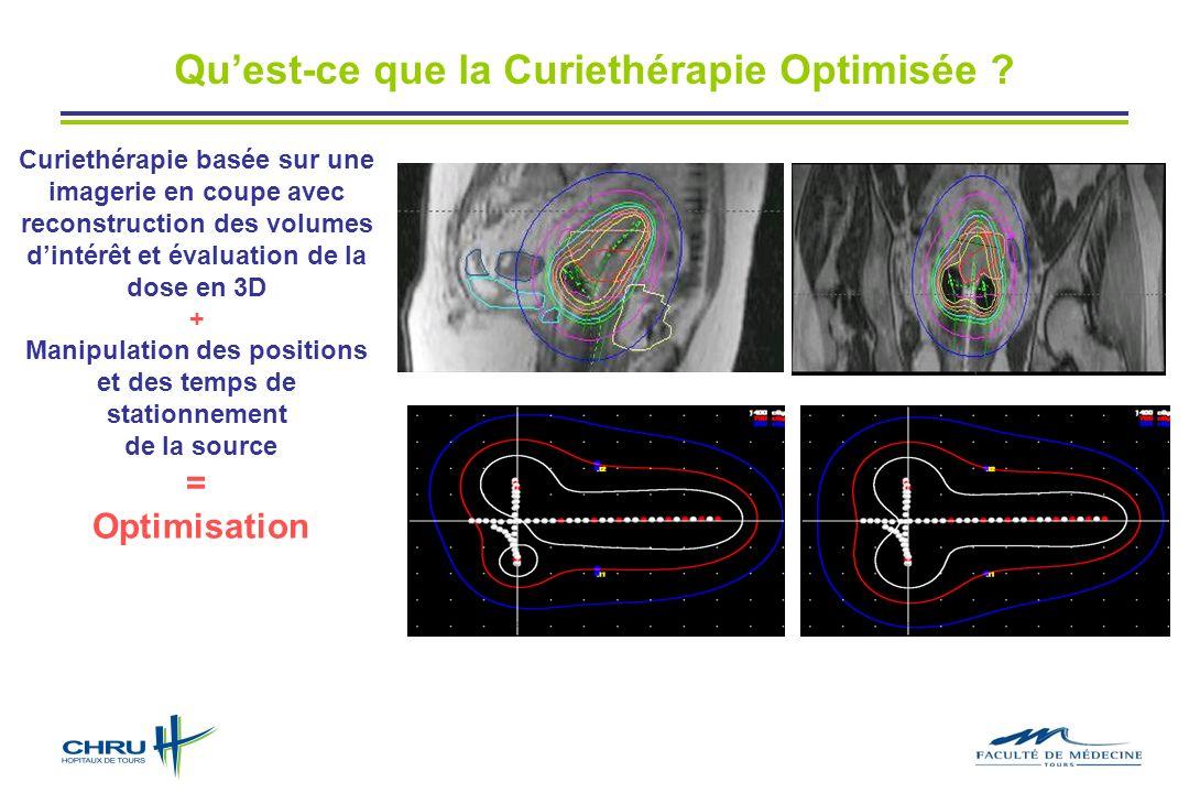 Quest-ce que la Curiethérapie Optimisée ? Curiethérapie basée sur une imagerie en coupe avec reconstruction des volumes dintérêt et évaluation de la d