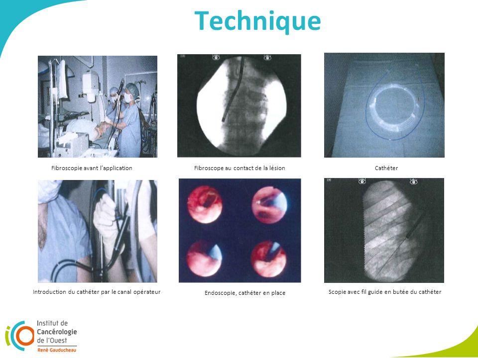 Technique Scopie avec fil guide en butée du cathéter Endoscopie, cathéter en place Introduction du cathéter par le canal opérateur CathéterFibroscope