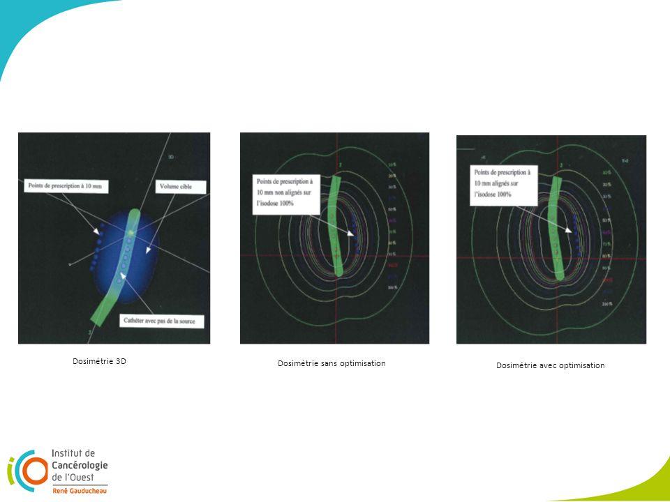 Dosimétrie 3D Dosimétrie sans optimisation Dosimétrie avec optimisation