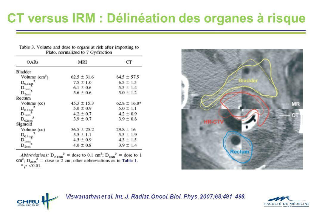 Viswanathan et al. Int. J. Radiat. Oncol. Biol. Phys. 2007;68:491–498. CT versus IRM : Délinéation des organes à risque