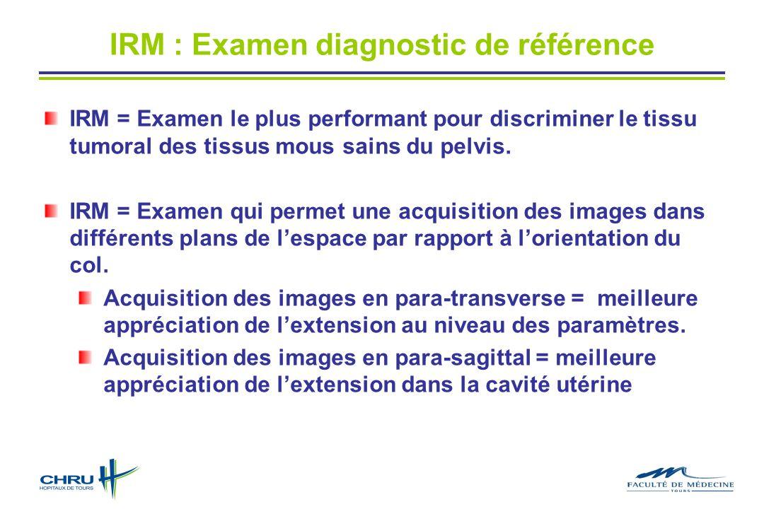 IRM : Examen diagnostic de référence IRM = Examen le plus performant pour discriminer le tissu tumoral des tissus mous sains du pelvis. IRM = Examen q