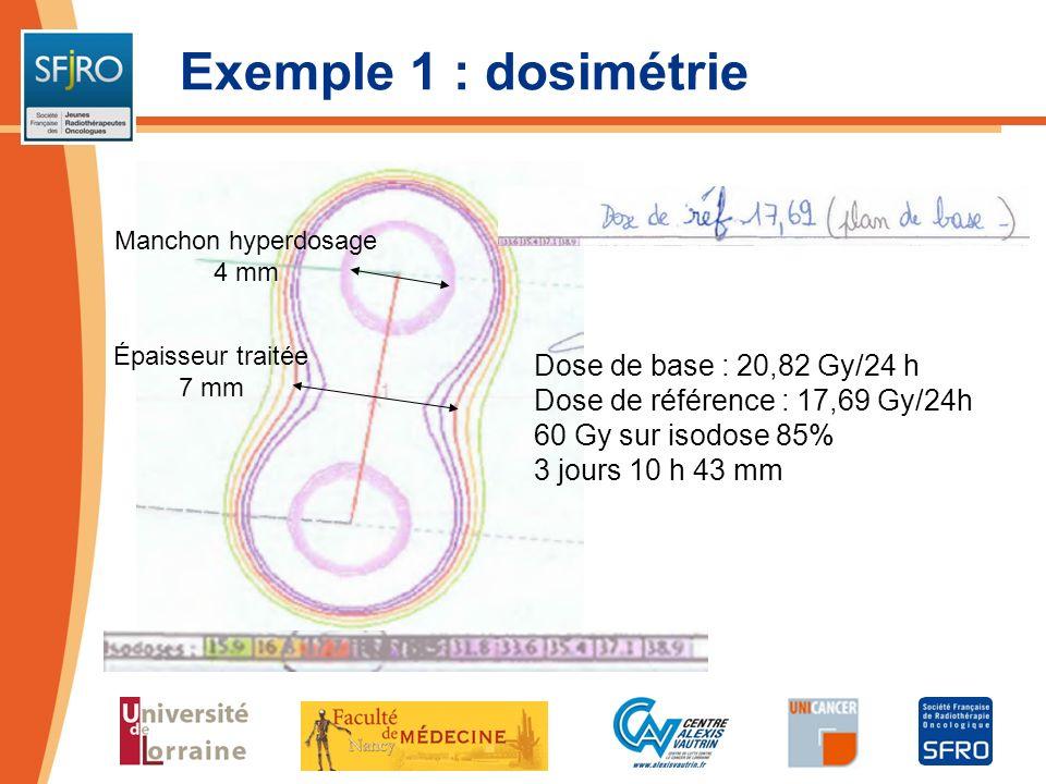 Exemple 1 : dosimétrie Dose de base : 20,82 Gy/24 h Dose de référence : 17,69 Gy/24h 60 Gy sur isodose 85% 3 jours 10 h 43 mm Manchon hyperdosage 4 mm