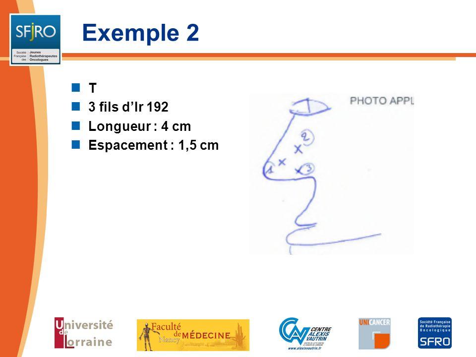 Exemple 2 T 3 fils dIr 192 Longueur : 4 cm Espacement : 1,5 cm