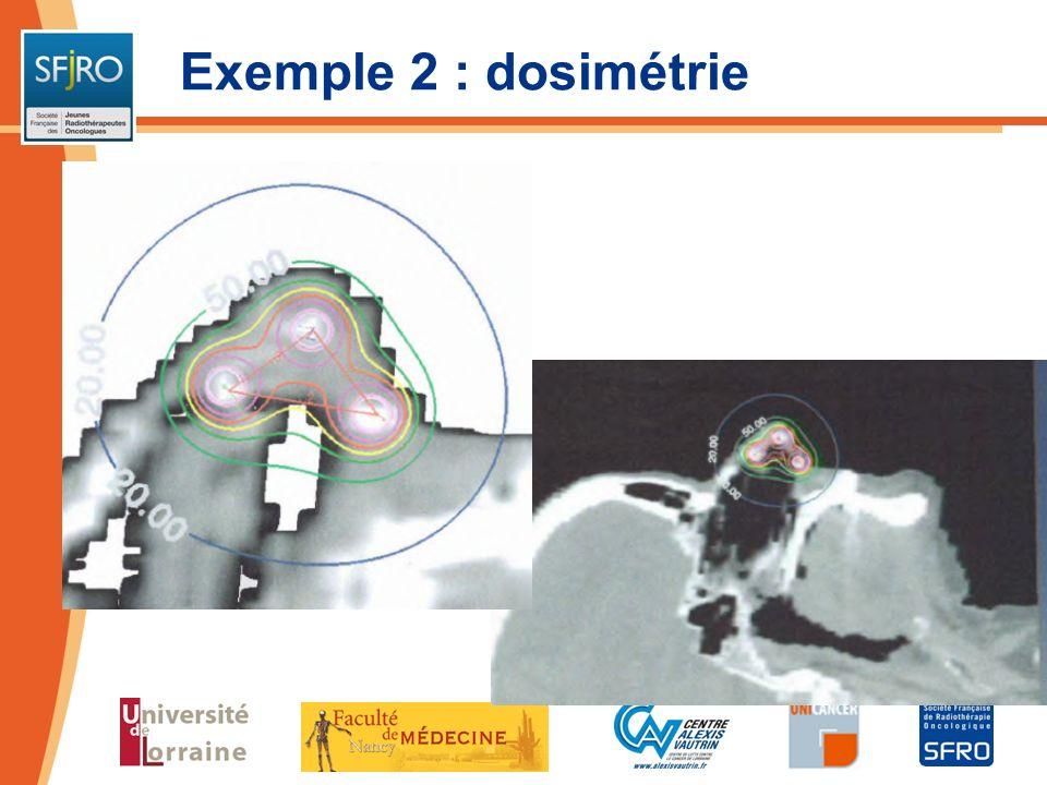 Exemple 2 : dosimétrie