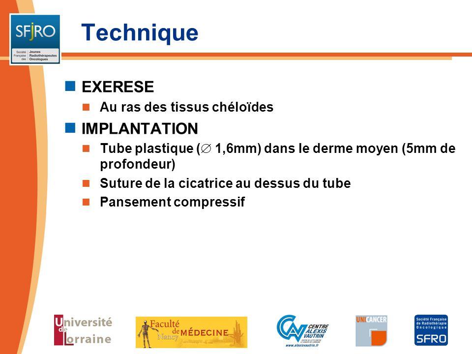 Technique EXERESE Au ras des tissus chéloïdes IMPLANTATION Tube plastique ( 1,6mm) dans le derme moyen (5mm de profondeur) Suture de la cicatrice au d