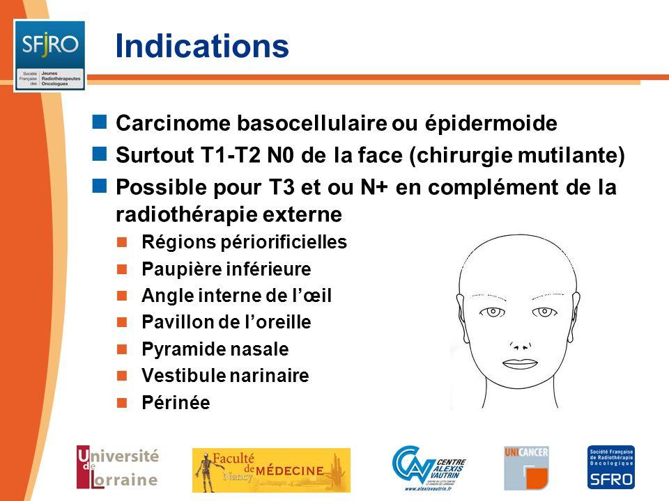 Indications Carcinome basocellulaire ou épidermoide Surtout T1-T2 N0 de la face (chirurgie mutilante) Possible pour T3 et ou N+ en complément de la ra
