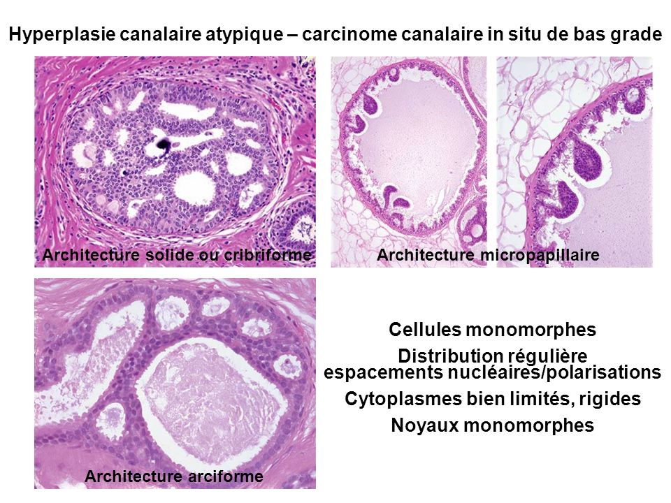 Hyperplasie canalaire atypique – carcinome canalaire in situ de bas grade Architecture solide ou cribriformeArchitecture micropapillaire Architecture