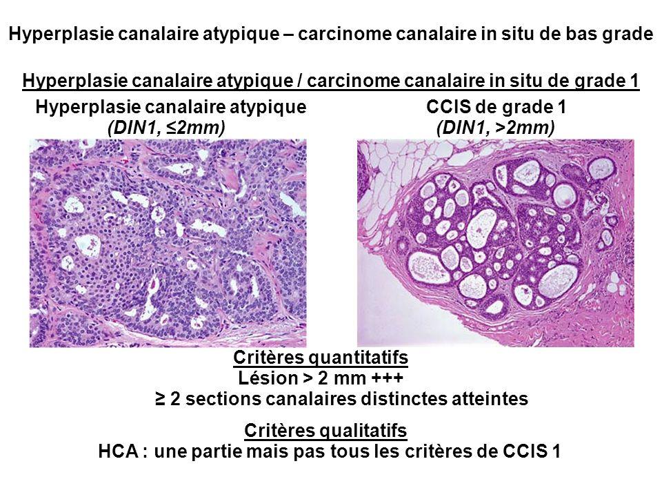 Hyperplasie canalaire atypique / carcinome canalaire in situ de grade 1 CCIS de grade 1Hyperplasie canalaire atypique Critères quantitatifs Lésion > 2 mm +++ 2 sections canalaires distinctes atteintes Critères qualitatifs HCA : une partie mais pas tous les critères de CCIS 1 Hyperplasie canalaire atypique – carcinome canalaire in situ de bas grade (DIN1, 2mm)(DIN1, >2mm)