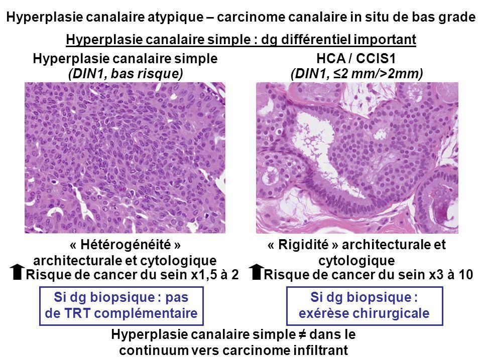 Hyperplasie canalaire atypique – carcinome canalaire in situ de bas grade Hyperplasie canalaire simple : dg différentiel important Hyperplasie canalaire simpleHCA / CCIS1 « Rigidité » architecturale et cytologique « Hétérogénéité » architecturale et cytologique Risque de cancer du sein x1,5 à 2Risque de cancer du sein x3 à 10 Si dg biopsique : pas de TRT complémentaire Si dg biopsique : exérèse chirurgicale Hyperplasie canalaire simple dans le continuum vers carcinome infiltrant (DIN1, bas risque)(DIN1, 2 mm/>2mm)