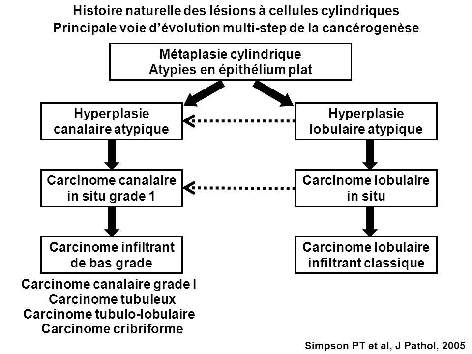 Métaplasie cylindrique Atypies en épithélium plat Hyperplasie canalaire atypique Simpson PT et al, J Pathol, 2005 Histoire naturelle des lésions à cel