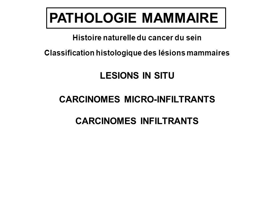 PATHOLOGIE MAMMAIRE LESIONS IN SITU CARCINOMES INFILTRANTS CARCINOMES MICRO-INFILTRANTS Histoire naturelle du cancer du sein Classification histologique des lésions mammaires