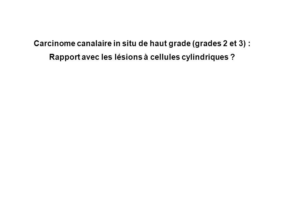 Carcinome canalaire in situ de haut grade (grades 2 et 3) : Rapport avec les lésions à cellules cylindriques ?