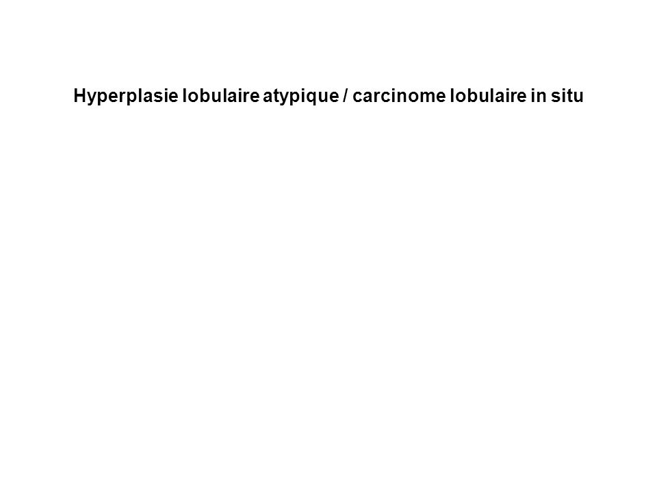 Hyperplasie lobulaire atypique / carcinome lobulaire in situ