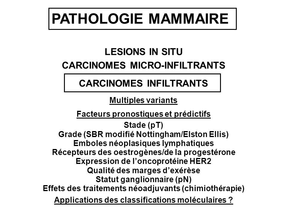 LESIONS IN SITU CARCINOMES INFILTRANTS CARCINOMES MICRO-INFILTRANTS Multiples variants Grade (SBR modifié Nottingham/Elston Ellis) Stade (pT) Récepteurs des oestrogènes/de la progestérone Emboles néoplasiques lymphatiques Expression de loncoprotéine HER2 Qualité des marges dexérèse Statut ganglionnaire (pN) Facteurs pronostiques et prédictifs Effets des traitements néoadjuvants (chimiothérapie) PATHOLOGIE MAMMAIRE Applications des classifications moléculaires ?
