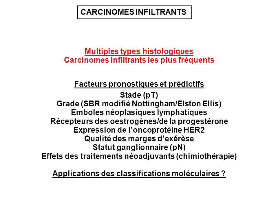 Multiples types histologiques Grade (SBR modifié Nottingham/Elston Ellis) Stade (pT) Récepteurs des oestrogènes/de la progestérone Emboles néoplasiques lymphatiques Expression de loncoprotéine HER2 Qualité des marges dexérèse Statut ganglionnaire (pN) Carcinomes infiltrants les plus fréquents CARCINOMES INFILTRANTS Effets des traitements néoadjuvants (chimiothérapie) Facteurs pronostiques et prédictifs Applications des classifications moléculaires ?