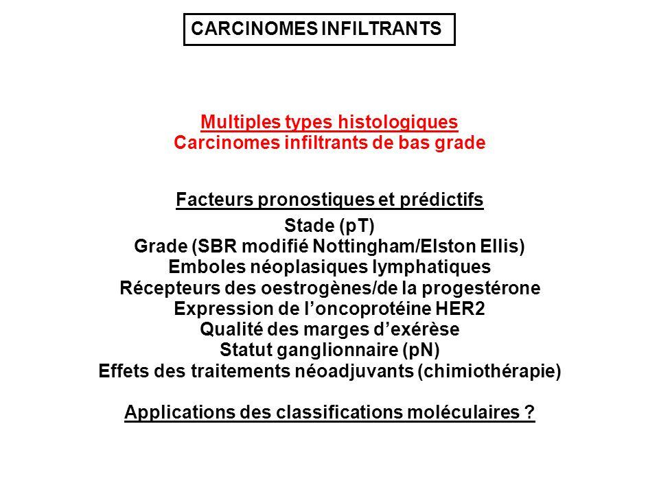 Multiples types histologiques Grade (SBR modifié Nottingham/Elston Ellis) Stade (pT) Récepteurs des oestrogènes/de la progestérone Emboles néoplasiques lymphatiques Expression de loncoprotéine HER2 Qualité des marges dexérèse Statut ganglionnaire (pN) Carcinomes infiltrants de bas grade Effets des traitements néoadjuvants (chimiothérapie) Facteurs pronostiques et prédictifs CARCINOMES INFILTRANTS Applications des classifications moléculaires ?