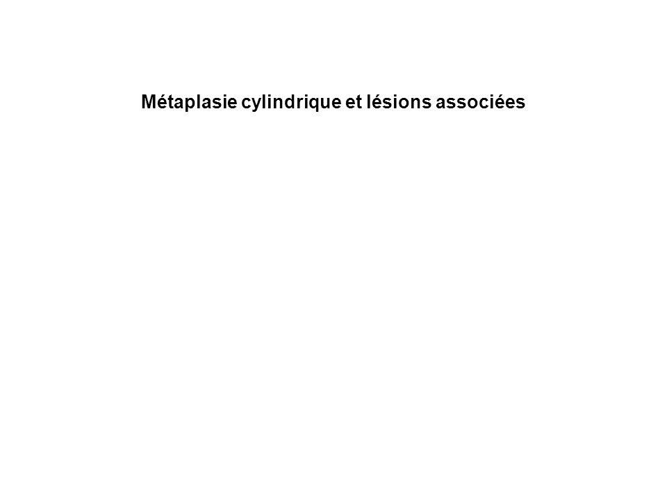 Métaplasie cylindrique et lésions associées