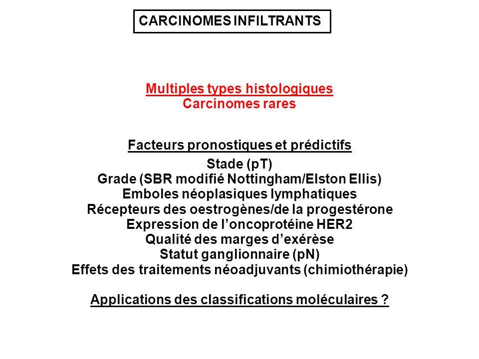 Multiples types histologiques Grade (SBR modifié Nottingham/Elston Ellis) Stade (pT) Récepteurs des oestrogènes/de la progestérone Emboles néoplasique