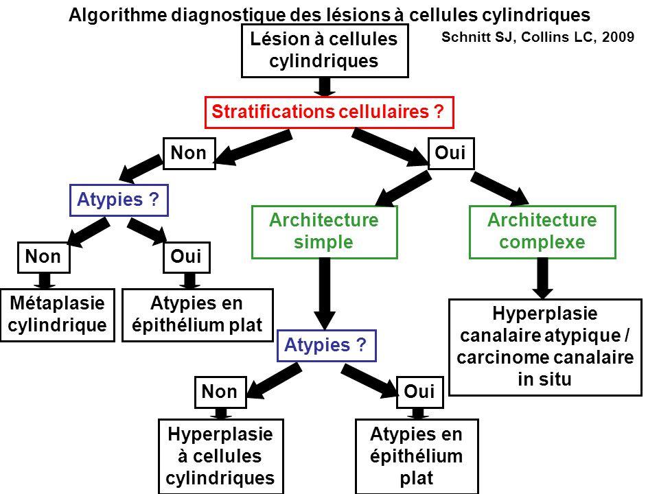 Algorithme diagnostique des lésions à cellules cylindriques Lésion à cellules cylindriques Stratifications cellulaires ? NonOui Atypies ? Architecture