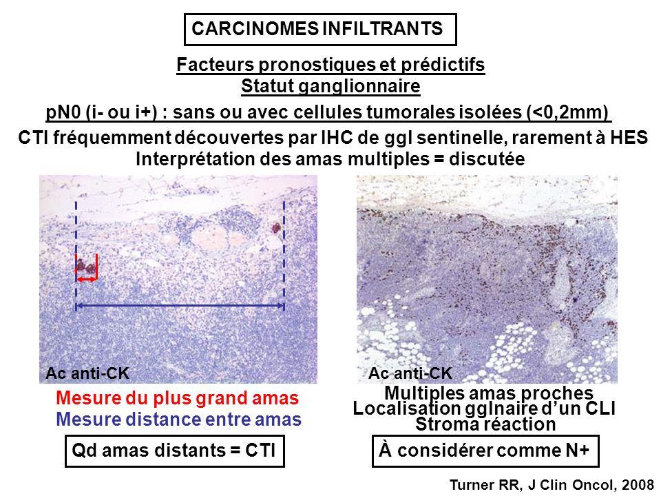 Facteurs pronostiques et prédictifs pN0 (i- ou i+) : sans ou avec cellules tumorales isolées (<0,2mm) CTI fréquemment découvertes par IHC de ggl sentinelle, rarement à HES Interprétation des amas multiples = discutée Mesure du plus grand amas Mesure distance entre amas Qd amas distants = CTI Localisation gglnaire dun CLI À considérer comme N+ Multiples amas proches Stroma réaction Ac anti-CK Statut ganglionnaire Turner RR, J Clin Oncol, 2008 CARCINOMES INFILTRANTS
