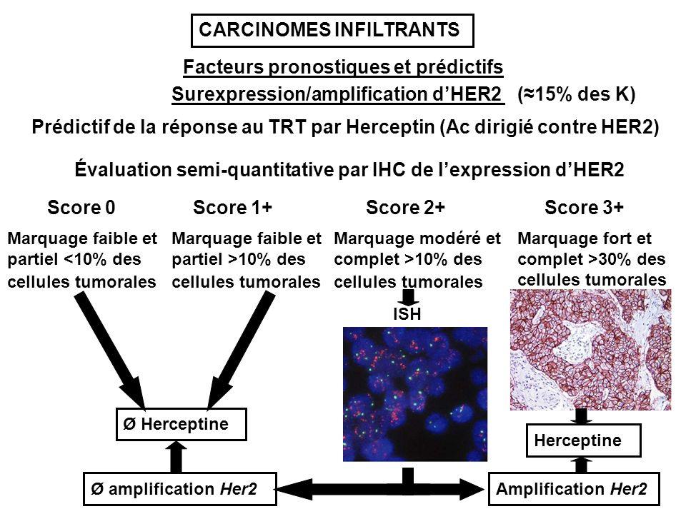 Facteurs pronostiques et prédictifs Surexpression/amplification dHER2 Prédictif de la réponse au TRT par Herceptin (Ac dirigié contre HER2) Évaluation semi-quantitative par IHC de lexpression dHER2 Score 2+Score 1+Score 0Score 3+ Marquage faible et partiel <10% des cellules tumorales Marquage faible et partiel >10% des cellules tumorales Marquage modéré et complet >10% des cellules tumorales Marquage fort et complet >30% des cellules tumorales ISH Amplification Her2Ø amplification Her2 Ø Herceptine Herceptine (15% des K) CARCINOMES INFILTRANTS