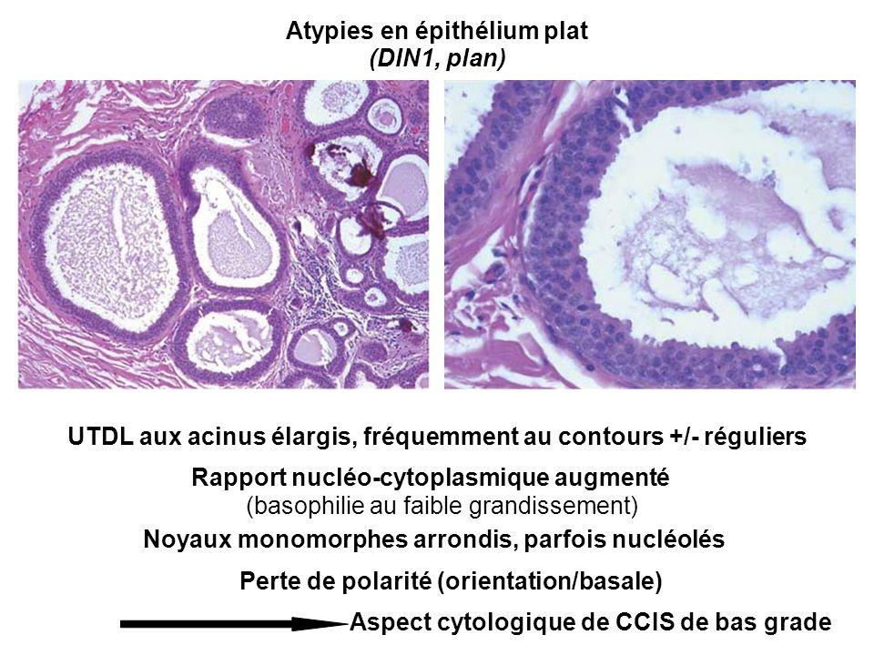 Atypies en épithélium plat UTDL aux acinus élargis, fréquemment au contours +/- réguliers Rapport nucléo-cytoplasmique augmenté (basophilie au faible grandissement) Noyaux monomorphes arrondis, parfois nucléolés Perte de polarité (orientation/basale) Aspect cytologique de CCIS de bas grade (DIN1, plan)