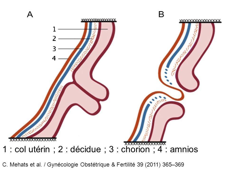 1 : col utérin ; 2 : décidue ; 3 : chorion ; 4 : amnios C. Mehats et al. / Gynécologie Obstétrique & Fertilité 39 (2011) 365–369