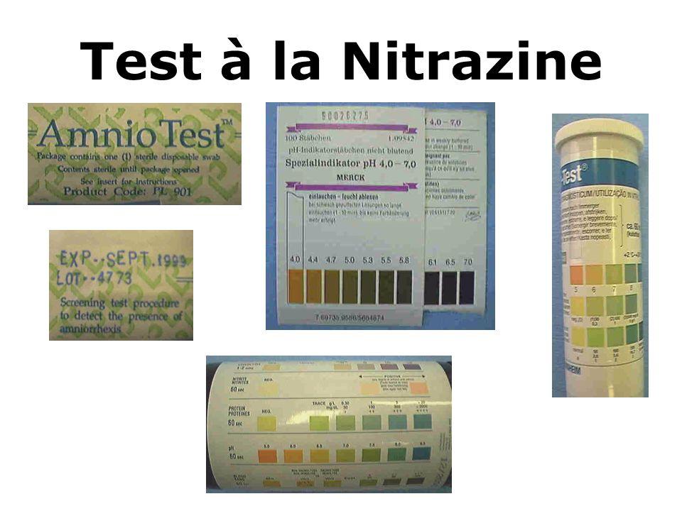 Test à la Nitrazine