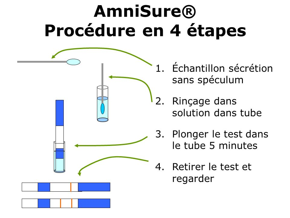 AmniSure® Procédure en 4 étapes 1.Échantillon sécrétion sans spéculum 2.Rinçage dans solution dans tube 3.Plonger le test dans le tube 5 minutes 4.Ret
