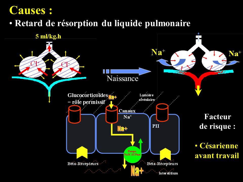 Causes : Retard de résorption du liquide pulmonaire Naissance Facteur de risque : Césarienne avant travail