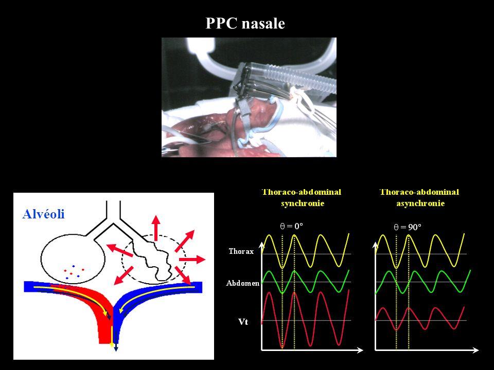 PPC nasale Alvéoli