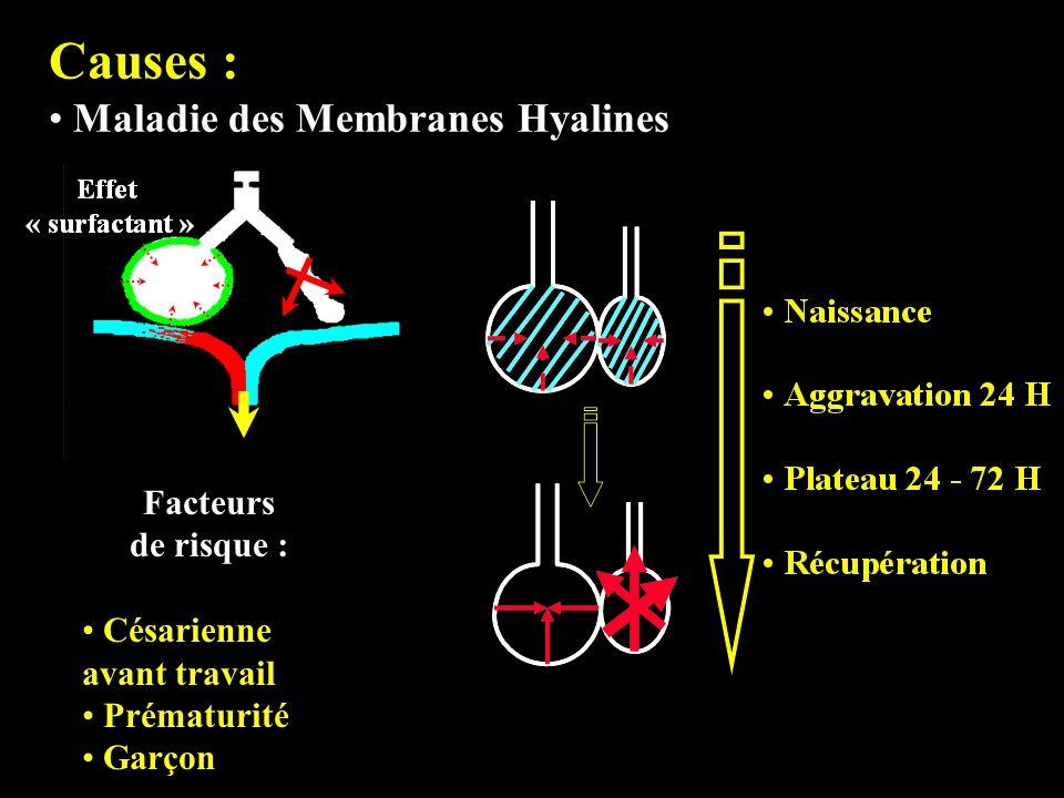 Causes : Maladie des Membranes Hyalines Facteurs de risque : Césarienne avant travail Prématurité Garçon