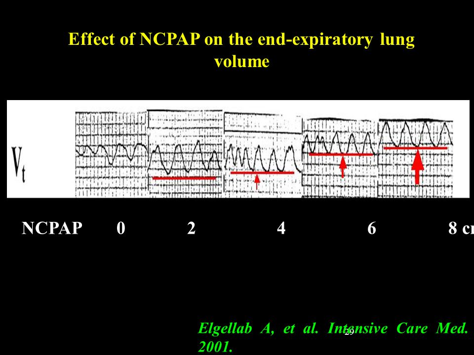 29 Effect of NCPAP on the end-expiratory lung volume Elgellab A, et al. Intensive Care Med. 2001. NCPAP0 2 4 68 cmH 2 0